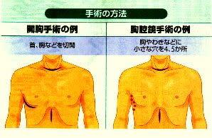 二種類の手術方法