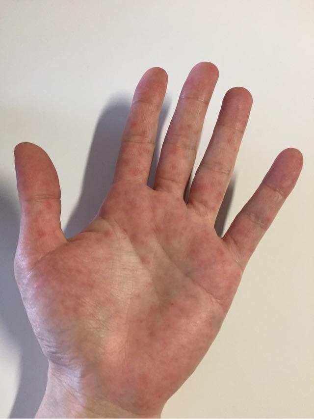 手足口病 口内炎画像