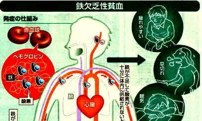 鉄欠乏性貧血発症の仕組み