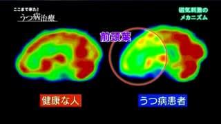 NHKスペシャル「ここまで来た!...