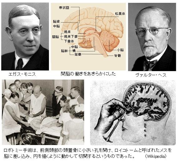 ロボトミー 手術 と は