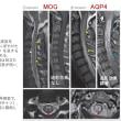 抗MOG抗体関連ミエロパチーの臨床・画像所見