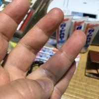 あっれ?指が腫れている!