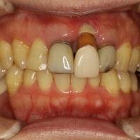 歯茎が壊死してしまった場合の歯茎の再生治療