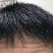 術後10ヶ月目〜いよいよフィナーレ 自毛植毛の感想 etc〜