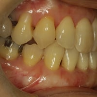 矯正治療の後に下の前歯の歯茎が下がってしまうことがよくあります。