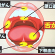 堀ちえみさんへ届け~舌がんと咽頭がん末期からの生還~