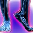 足のしびれにはり灸治療