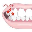 2日前から奥歯がシクシクと痛くなってきた。