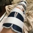 術後1日目〜ジャック1度目OP(右膝軟骨損傷&半月板損傷)