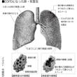 COPDにならないためには、「離煙」がいちばん!