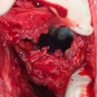 直腸膣瘻と第3度会陰裂傷