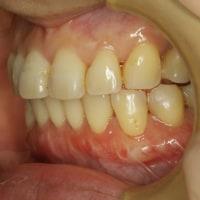 矯正治療後の歯茎の退縮には歯茎の再生治療が有効です。