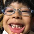 「いい歯の日」に初めて歯が抜けた‼️