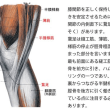 O脚修正でのポイント②‥‥膝関節周辺