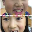 歯を抜きました