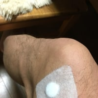 膝痛と腰痛