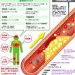 血栓 血栓症 急性肺血栓塞栓症(#エコノミークラス症候群)