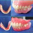 T先生の指導の総義歯製作