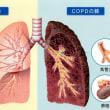 COPD(慢性閉塞性肺疾患)は恐ろしい病だ!!