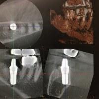 常に腫れない痛くないインプラント手術をし続けます。