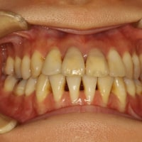 矯正後に歯茎が下がってしまうことがあります。特に下の前歯の歯茎が下がってしまうことがあります。