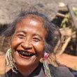 ミャンマーの生活習慣病の死亡原因トップは、喫煙!