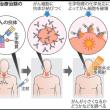 がん光治療  国内で治験へ 舌・咽頭など 米で効果確認
