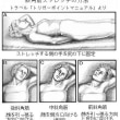 胸郭出口症候群の針灸治療 Ver.1.5
