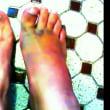 aiueo700 の足がグロい…まるで映画SAWのワンシーン