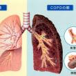 藤村俊一さん逝く。タバコを吸わなければもう少し長生きができたのでは??