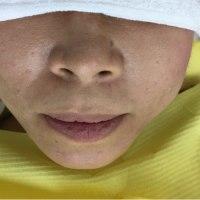 facebookで松元教貢歯科医院をフォローして下さい。リアルなインプラント情報を随時出してます!