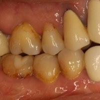 あなたの差し歯は長くなってしまっていませんか? 歯茎を回復させる歯茎の再生治療のご紹介
