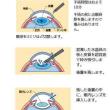 ≪白内障手術≫02