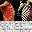 全身の筋肉がバリバリ‥‥胸の損傷
