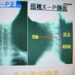 交通事故でのムチ打ち(頚椎捻挫・腰部捻挫)施術について(自賠責)