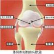 ひざの靭帯損傷 2