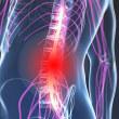 急性腰痛にはり灸治療