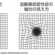 目の病気 加齢性黄班変性症