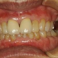70歳の方でも歯茎の再生は可能です。