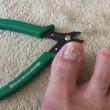 足の指 内出血(・_・;
