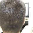 植毛1ヶ月 脱毛期間に入りました