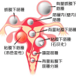 子宮筋腫についてその1