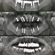 インプラントに歯科業界が血眼な訳、と私が一所懸命な理由
