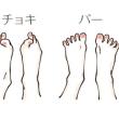 靴底の減り方で分かる体の歪み②~真ん中が減る~