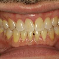 歯茎の再生治療例 〜若いのに全体的に歯茎が下がってしまった方の例〜