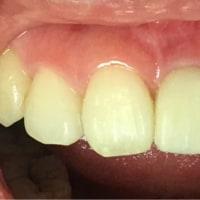 抜歯即時植立インプラントで、直ぐ歯を入れられて、綺麗に治します。腫れ痛みありません。