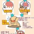 【頭痛】 頭痛や偏頭痛や頭が痛くなったりするのは原因があります