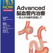 Advanced脳血管内治療