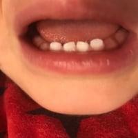 初めての雪と歯